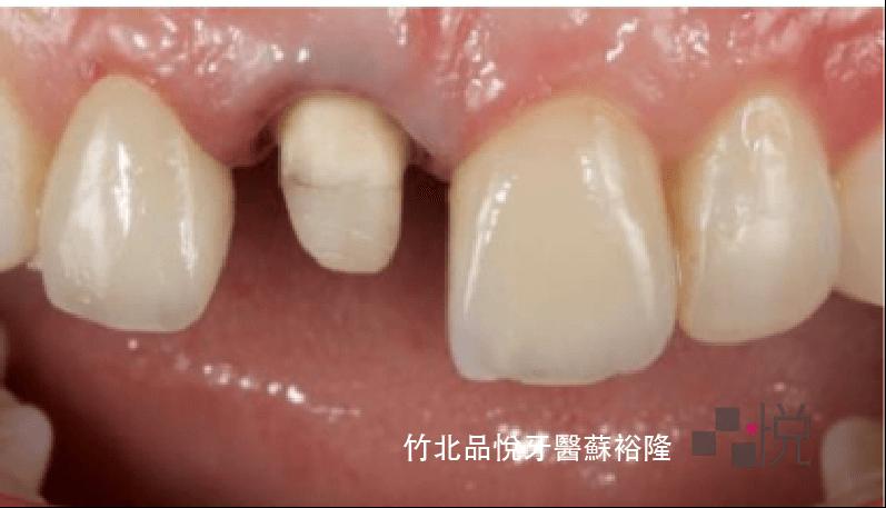 一顆牙齒被修磨成小小顆