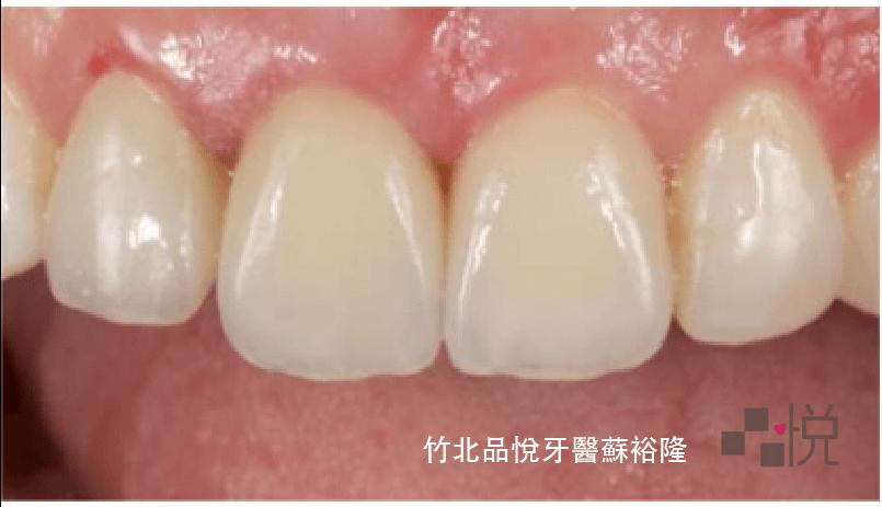 上顎磨小的牙齒裝上臨時假牙