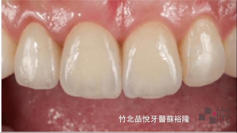 上顎磨小顆的牙齒裝上逼真的正式假牙