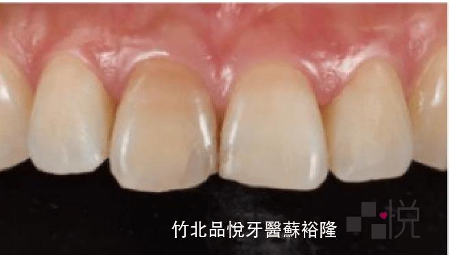 根管治療後單顆牙齒變色