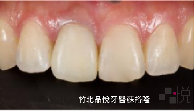 單顆牙齒裝上臨時假牙