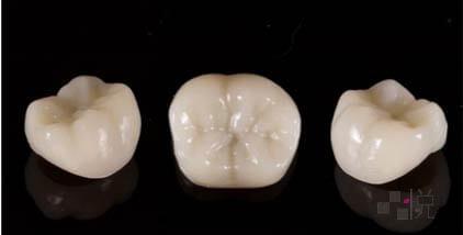 臨時假牙三顆