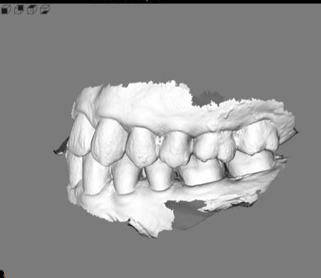 竹北牙醫數位口掃機掃描口腔閉合的牙齒狀態