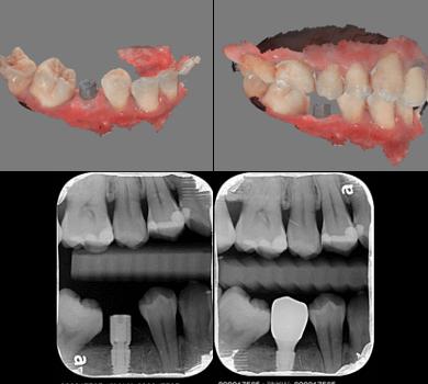 口掃機掃描植牙前後照
