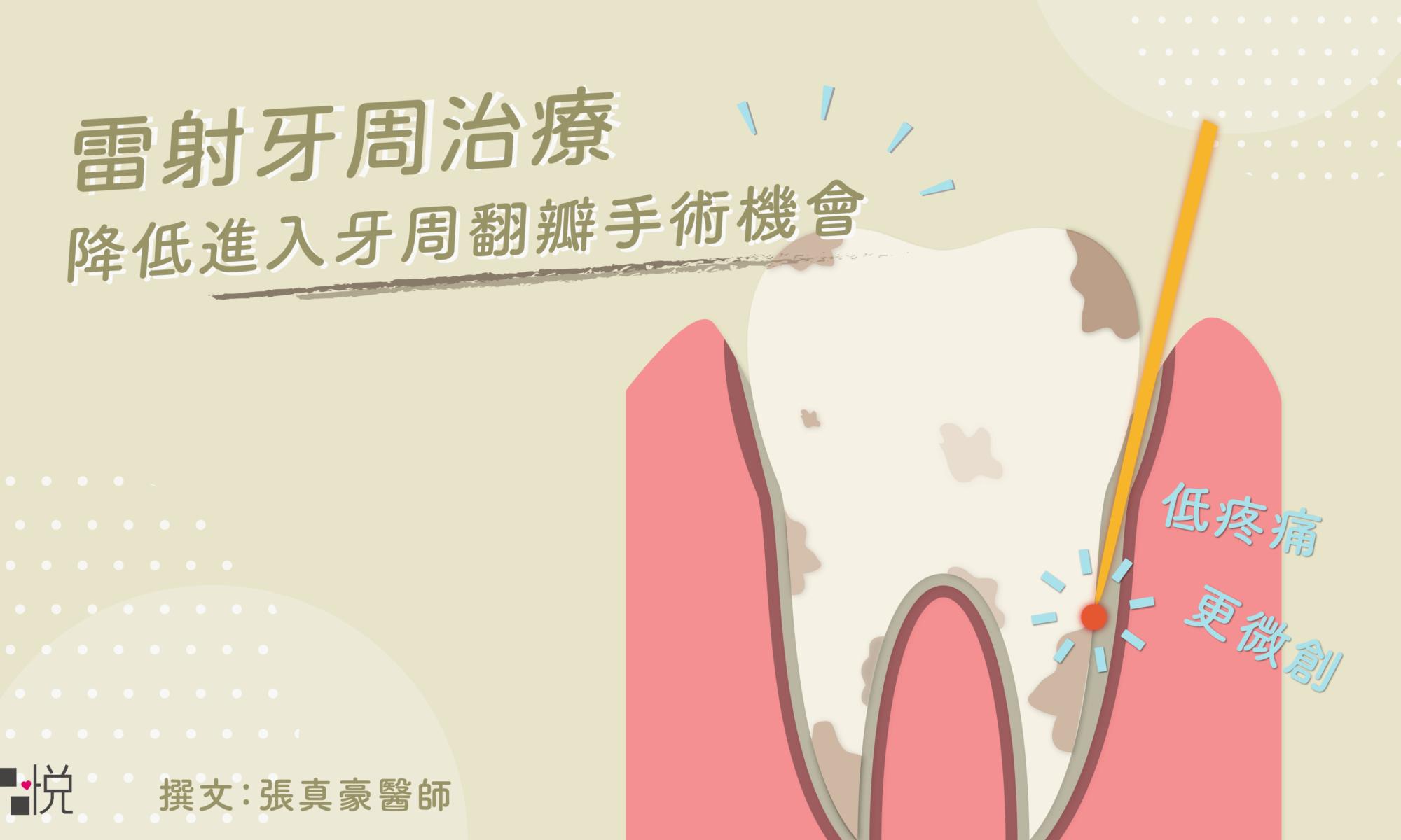 低疼痛的牙周病治療方式