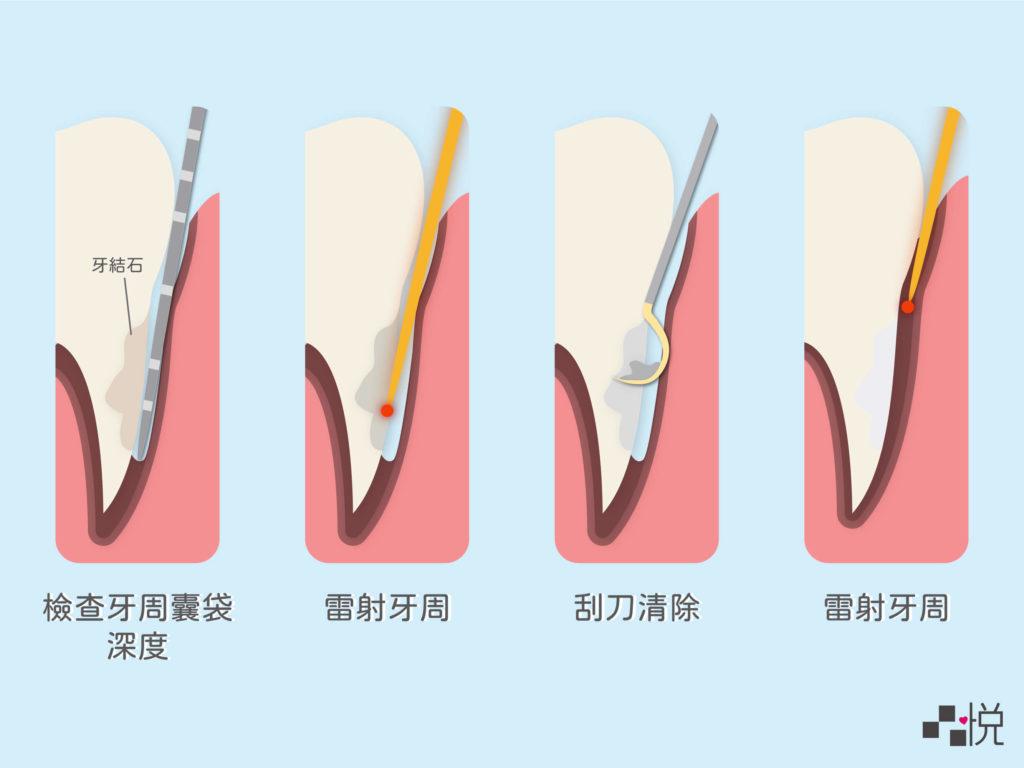 牙周雷射步驟圖