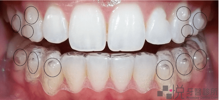 隱形矯正牙齒上的定位點