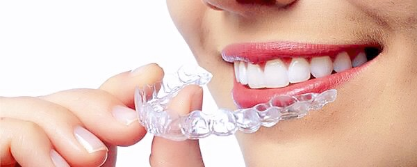 手指拿著透明牙托靠近微笑的嘴巴