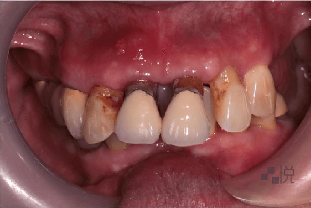 術前牙齦發炎