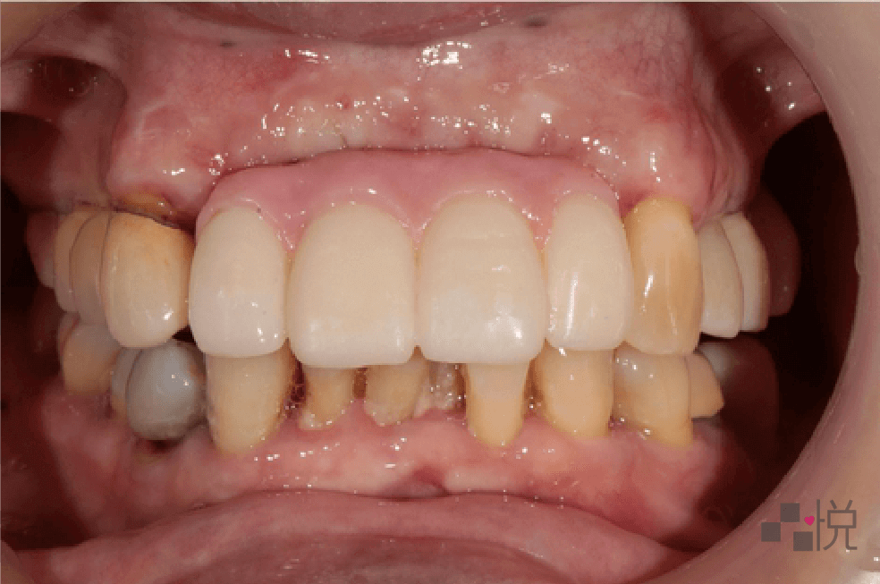 牙周病治療後裝上上顎假陶瓷牙