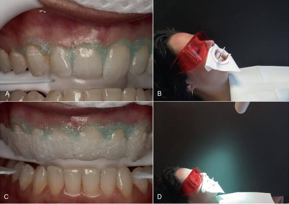 冷光美白需保護牙齦和配戴濾藍光眼鏡