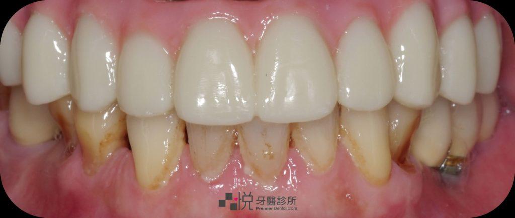 完成All-on-4全口植牙一日重建療程