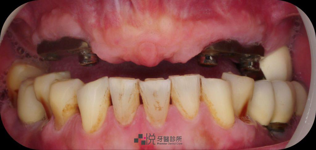 ao4術前(本來上顎是活動式假牙)