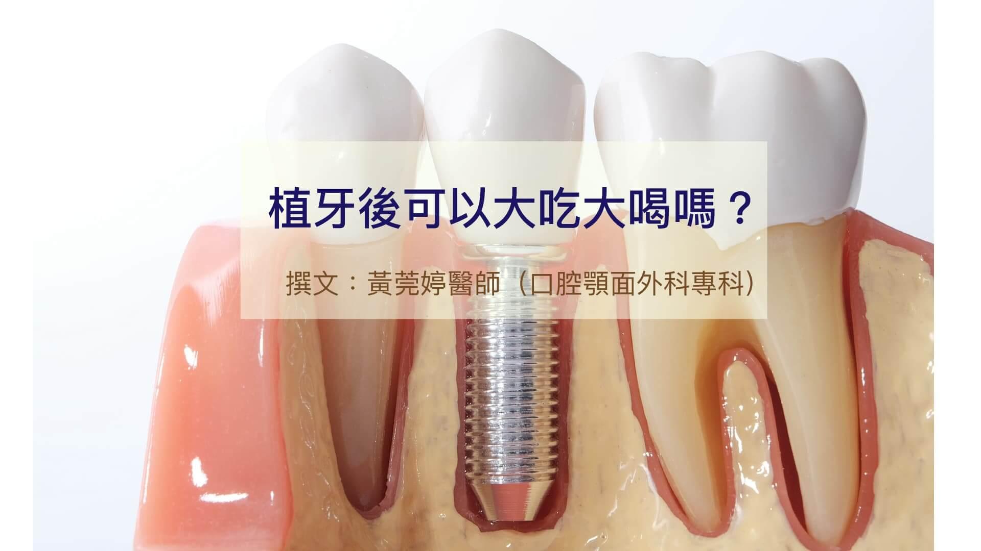 植牙後的金屬在牙齦裡