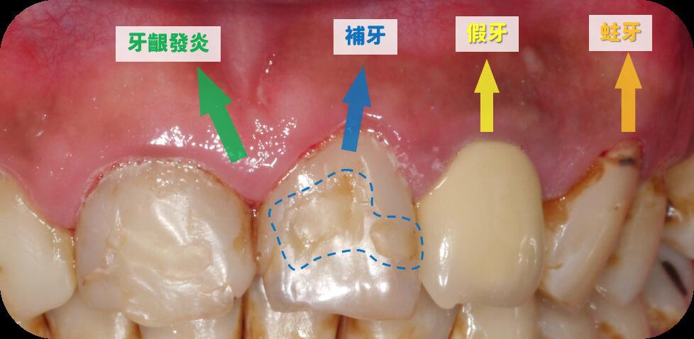 吳建恒醫師提供的上顎狀況不佳牙齒照片