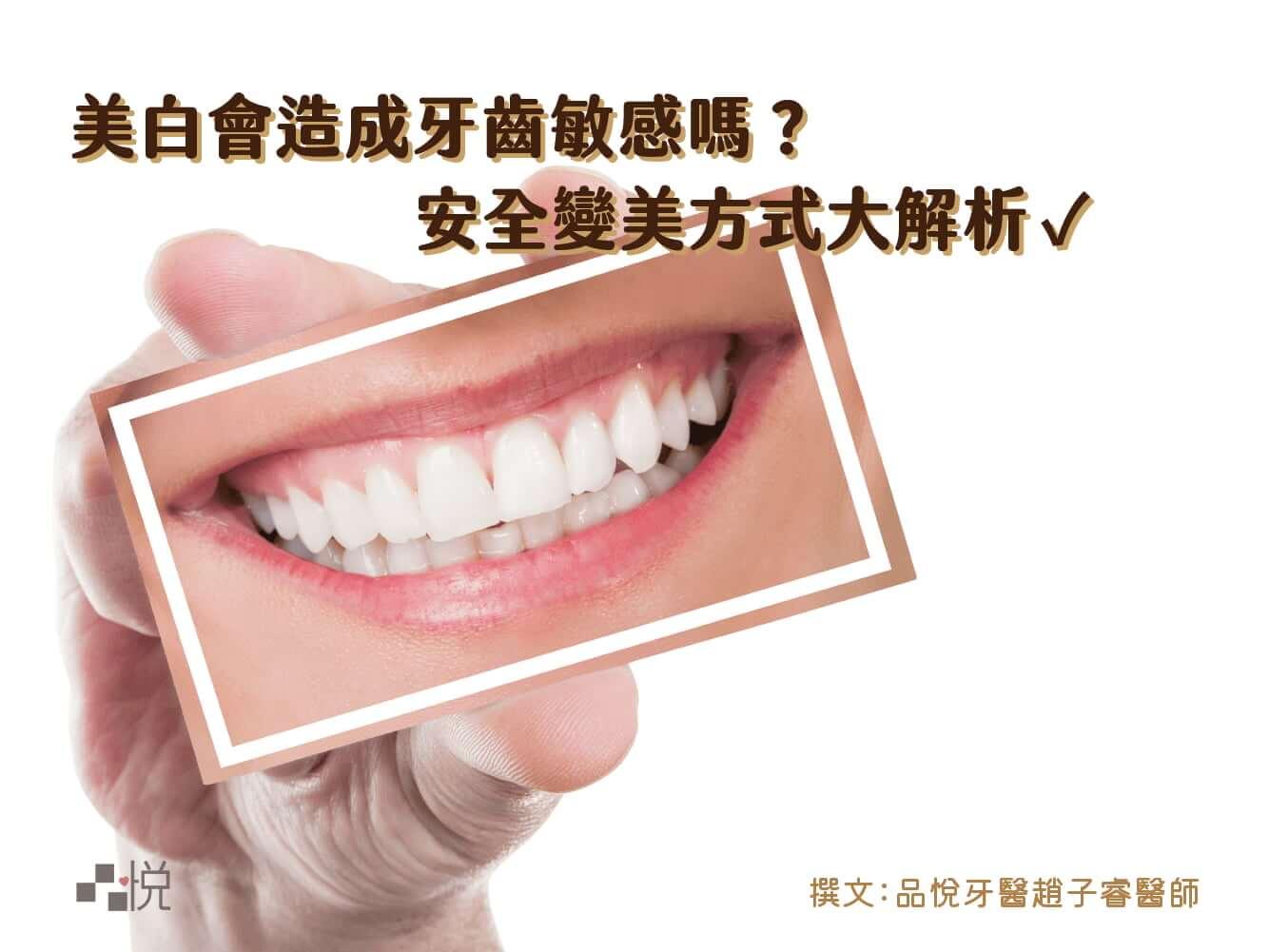 牙醫師解析安全的牙齒美白