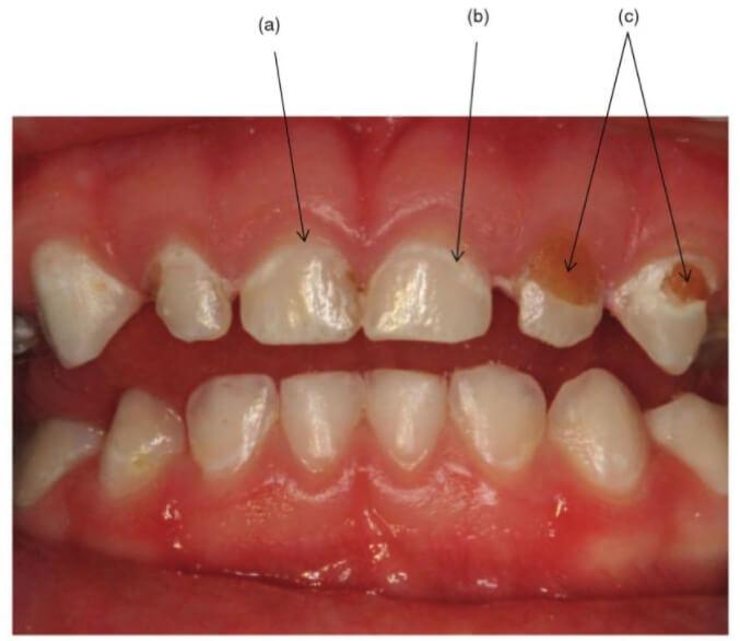 兒童蛀牙課本圖片