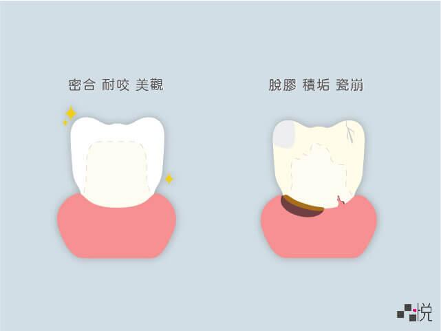 密合的牙套與脫膠積垢牙套的對比