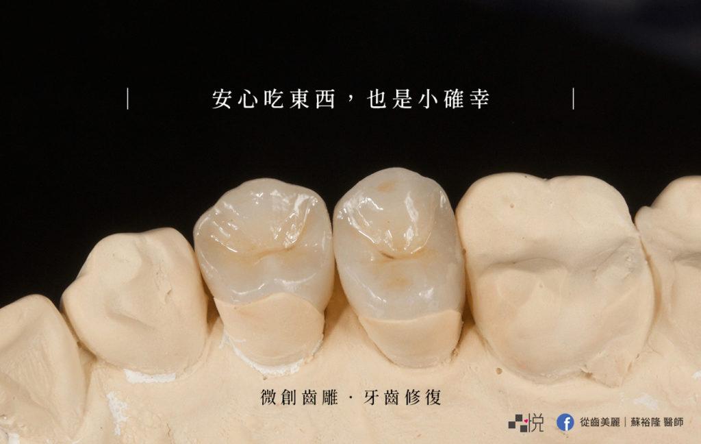 竹北品悅牙醫的齒雕實拍