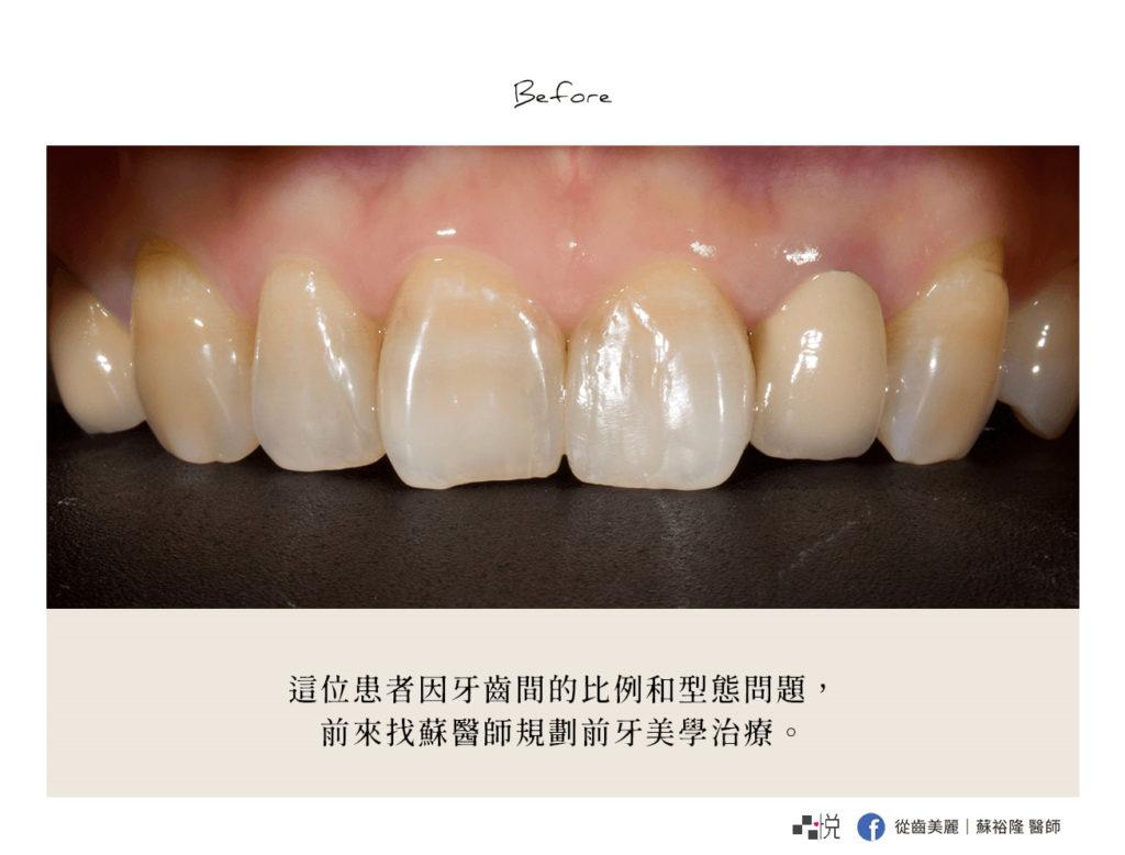 舊假牙使牙齦微微發黑