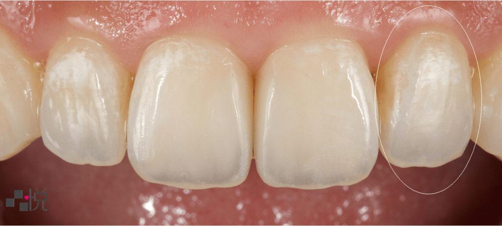 前牙的全瓷冠假牙