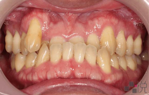 戽斗和虎牙正面照片案例三