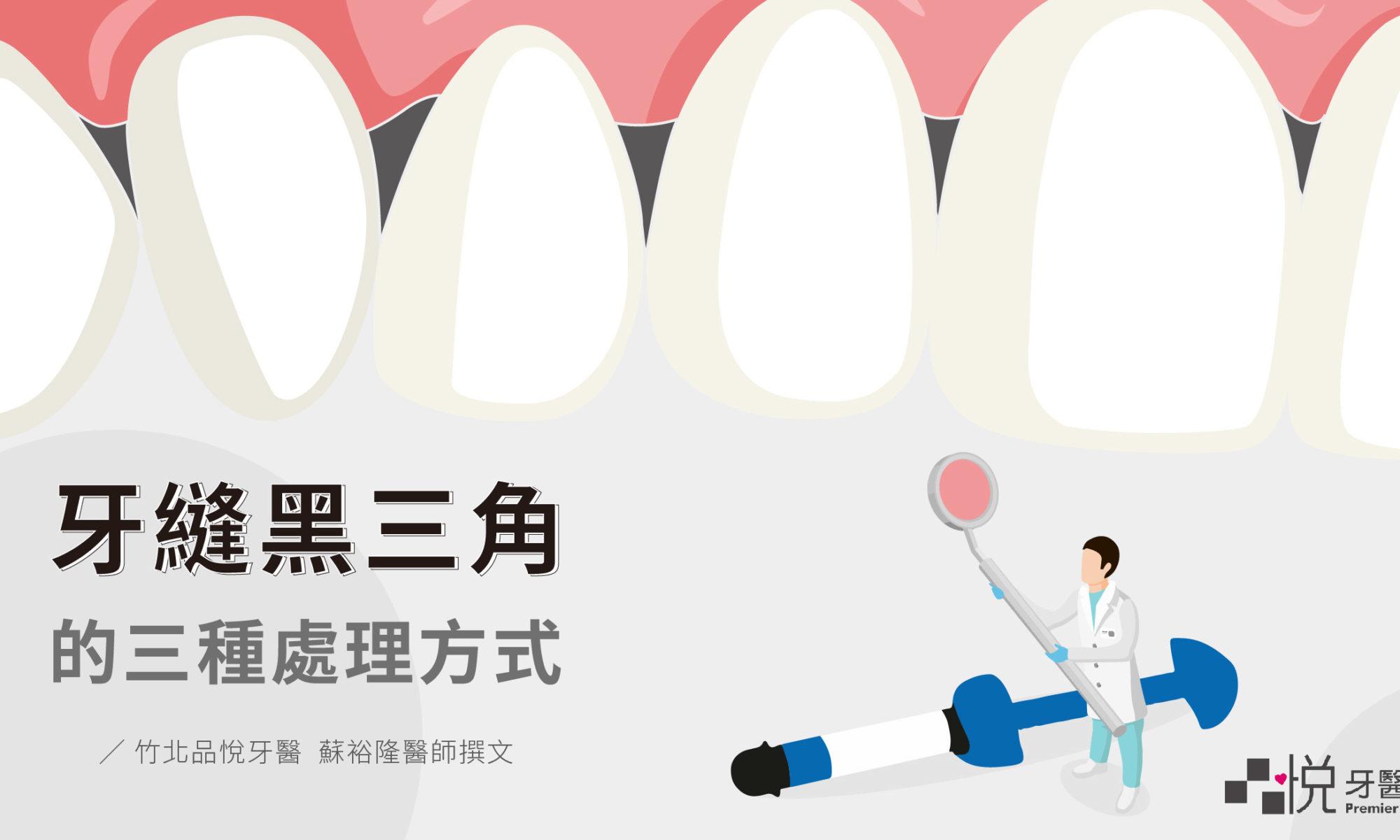牙縫黑三角的三種牙科處理方式