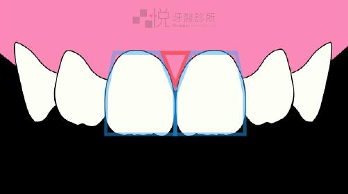 牙肉飽滿無黑三角牙齦