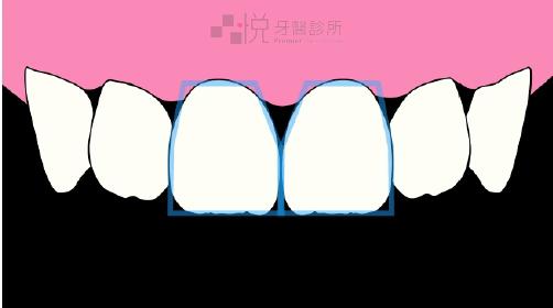 牙齦萎縮導致牙齦黑三角縫隙