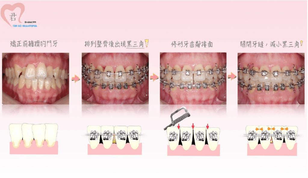 用牙齒矯正和磨牙填補黑三角