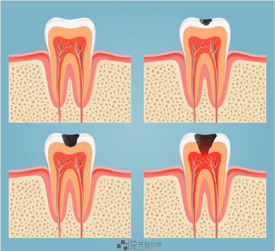 蛀牙隨時間變化的進程