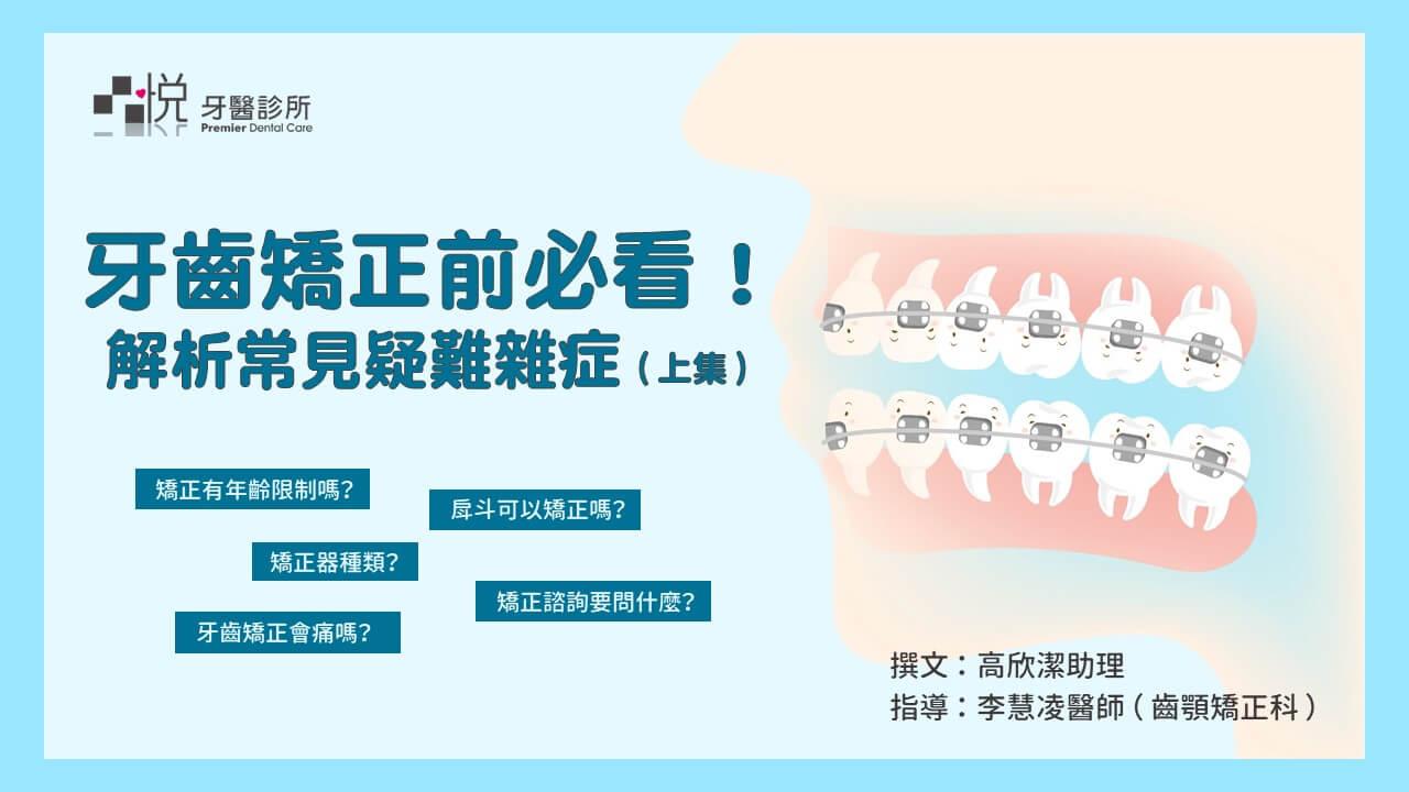 牙齒矯正前必看
