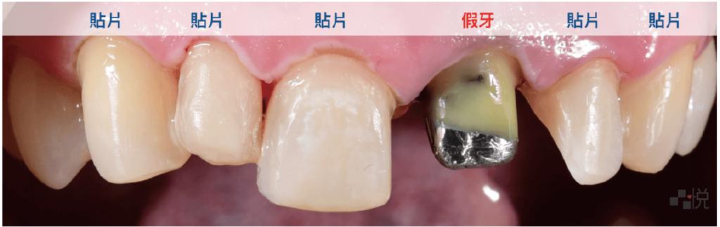 陶瓷貼片磨牙後遺症