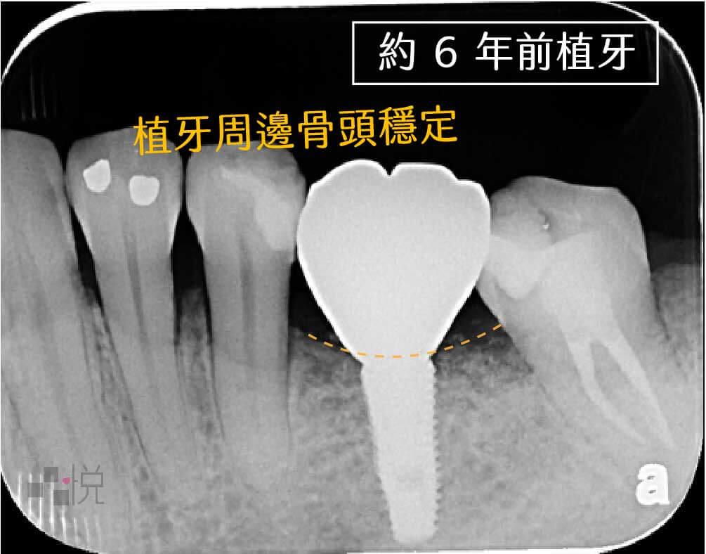 六年前植牙X光