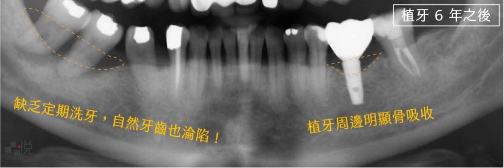 植牙六年後牙齦萎縮X光