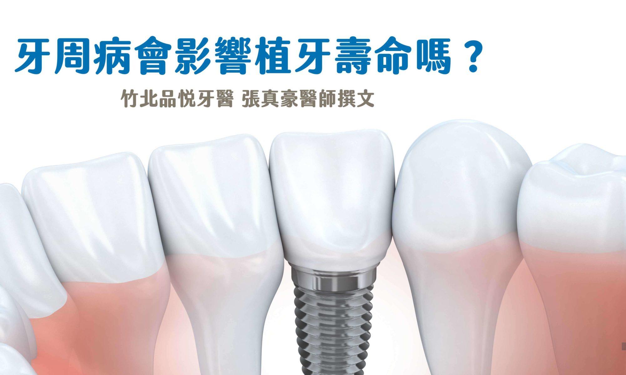 牙周病會影響植牙壽命嗎封面圖